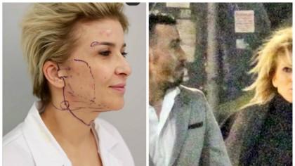 """POZE ȘOCANTE! """"Sharon Stone"""" de România și-a făcut transplant de față. Nici fotbalistul Adrian Cristea nu și-ar mai cunoaște fosta iubită"""