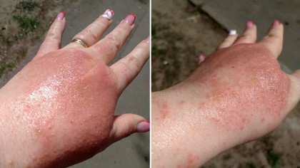 Caz șocant în Brăila! Imagini ireale! Ce a pățit o femeie după ce s-a spălat cu dezinfectant într-un supermarket